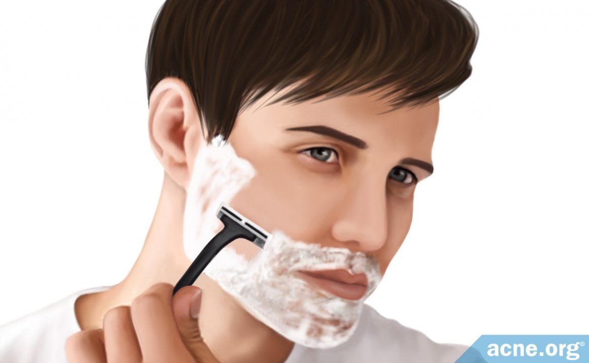 Is Shaving Good or Bad for Acne?