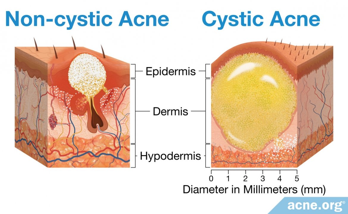 Regular Acne vs. Cystic Acne: What's the Difference?
