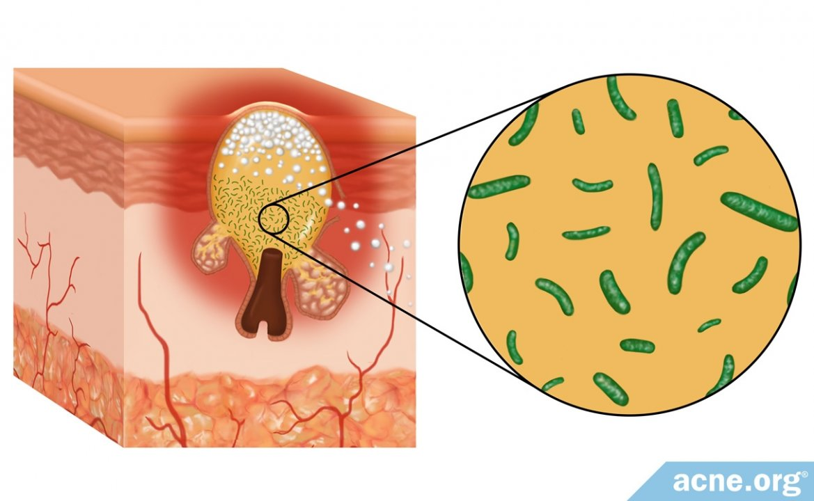 The Role of Bacteria in Acne