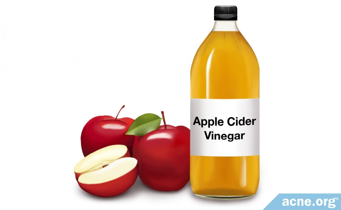 Topical Apple Cider Vinegar (ACV) and Acne