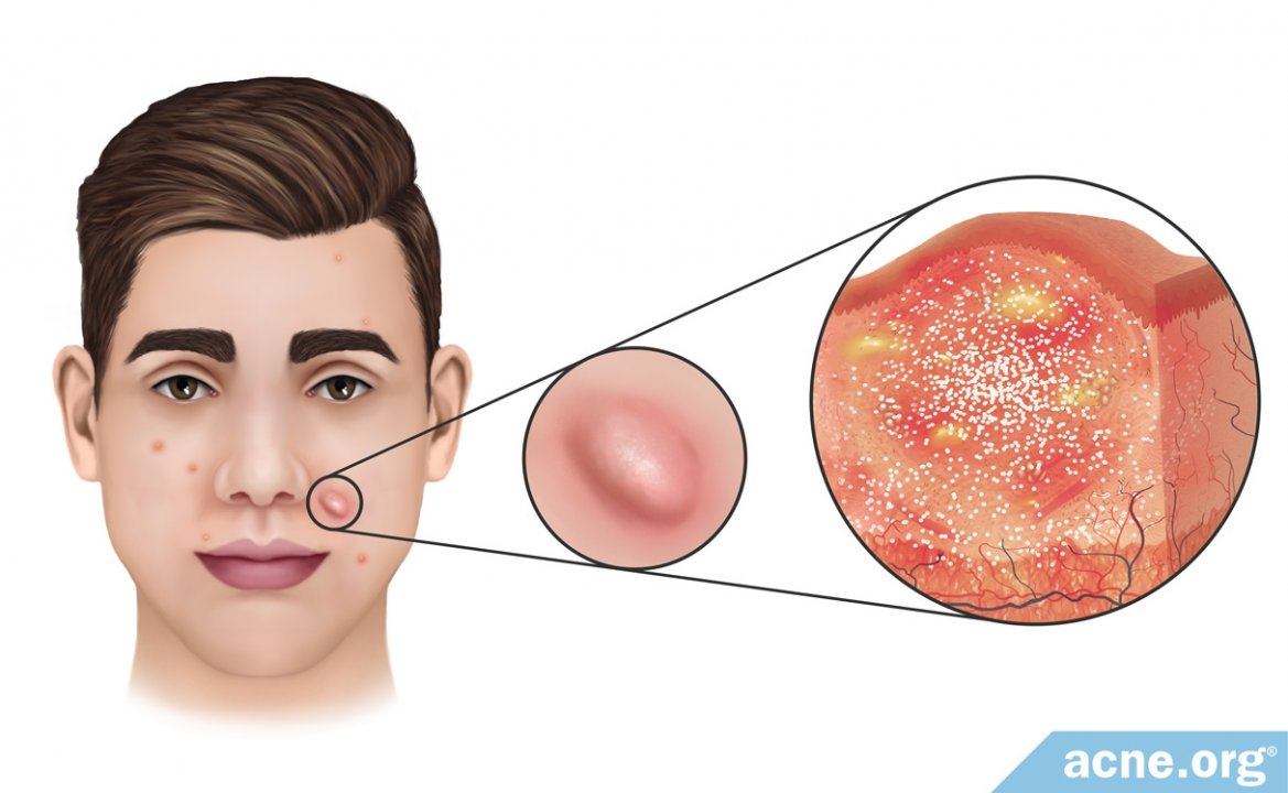 What Is an Acne Nodule?