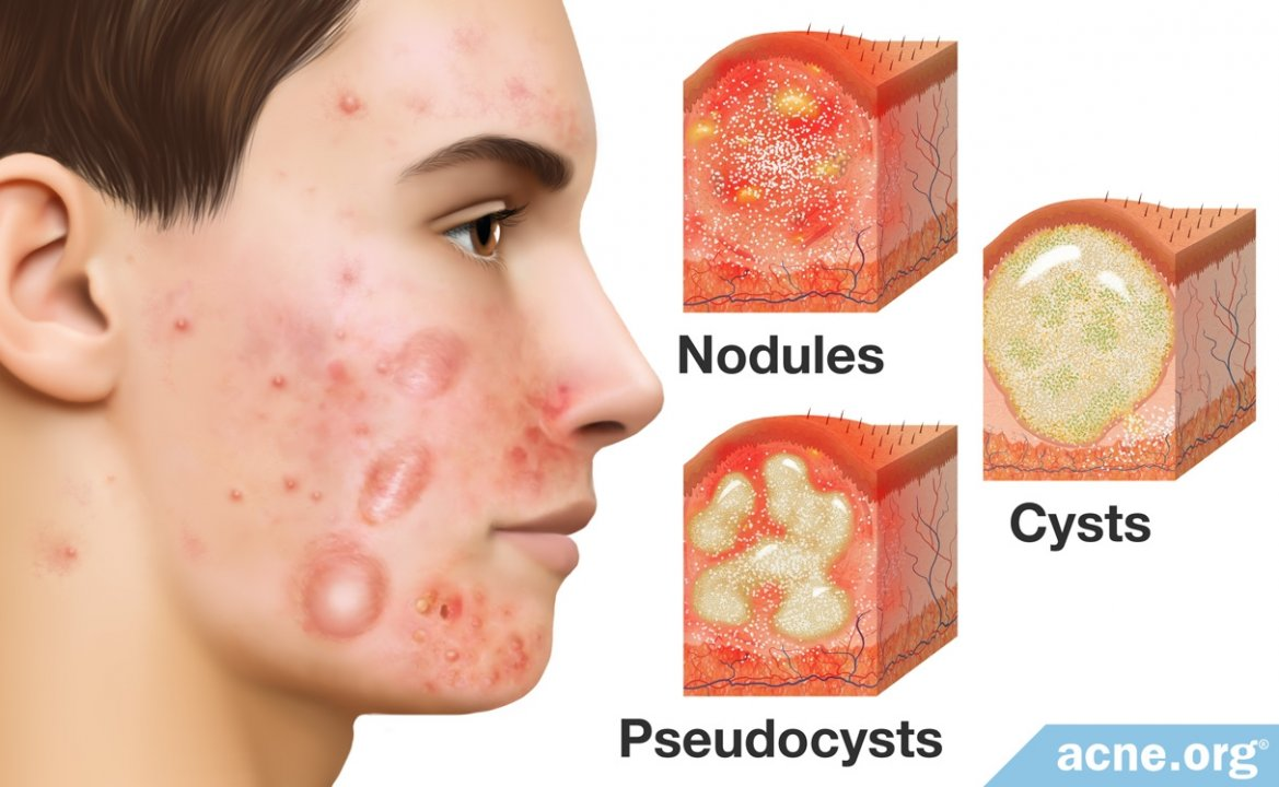 What Is Cystic Acne?