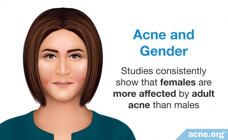 Acne and Gender