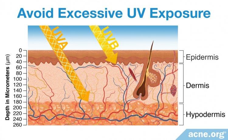 Avoid Excessive UV Exposure