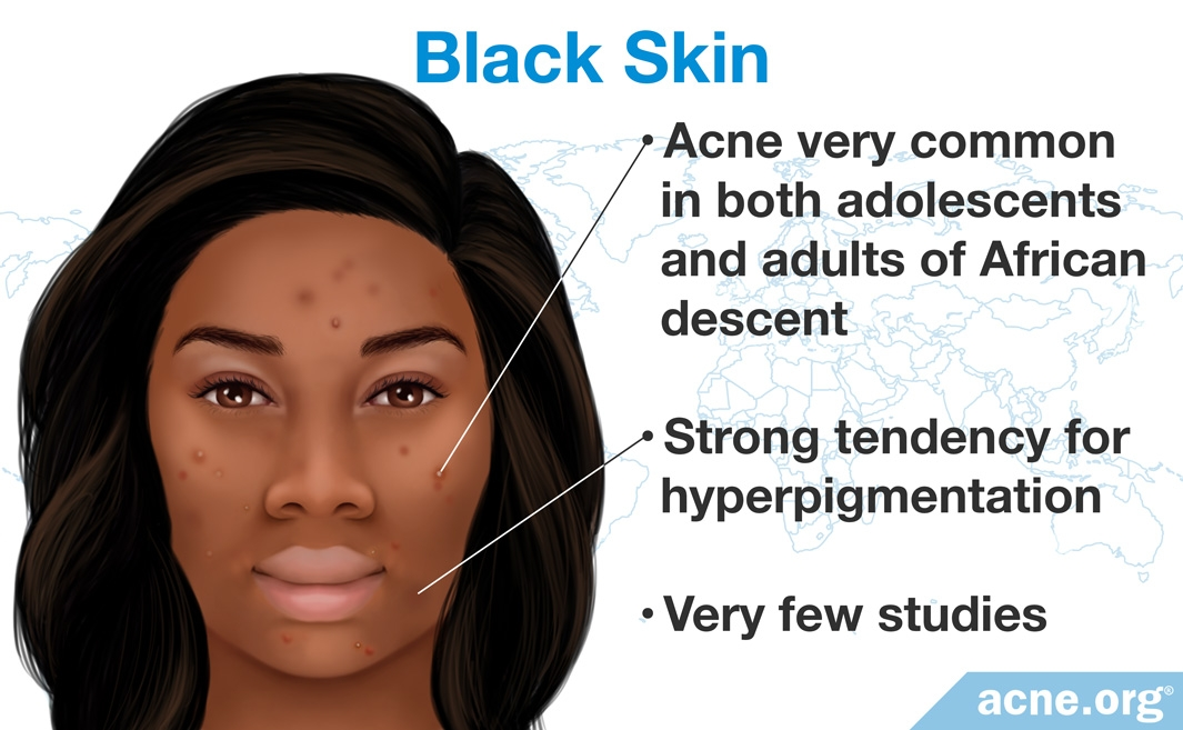 Treating Acne in Black Skin - Acne org