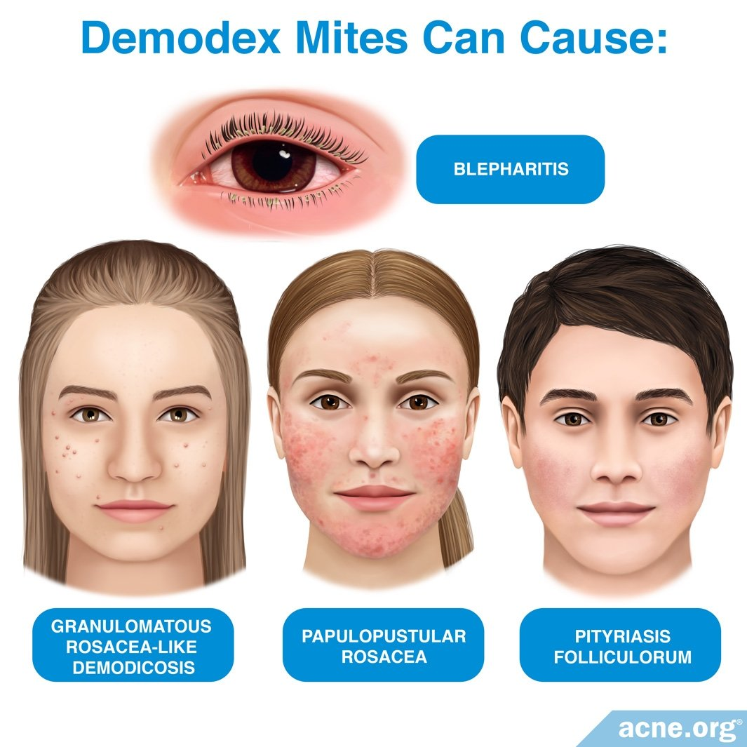 What Are Demodex Mites And What Role Do They Play In Acne Acne