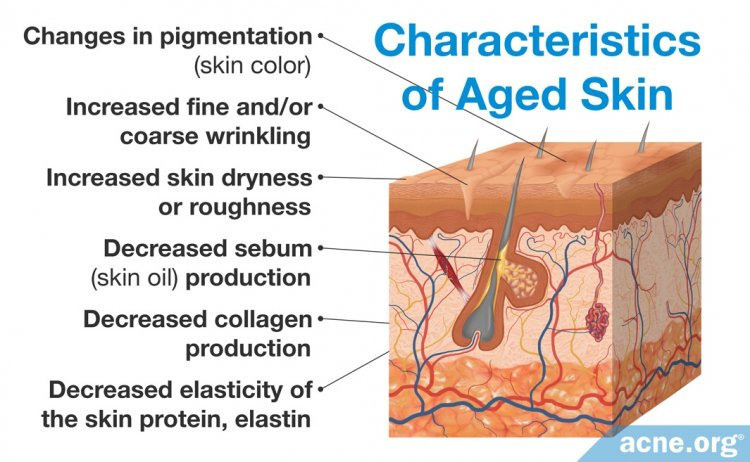 Characteristics of Aged Skin