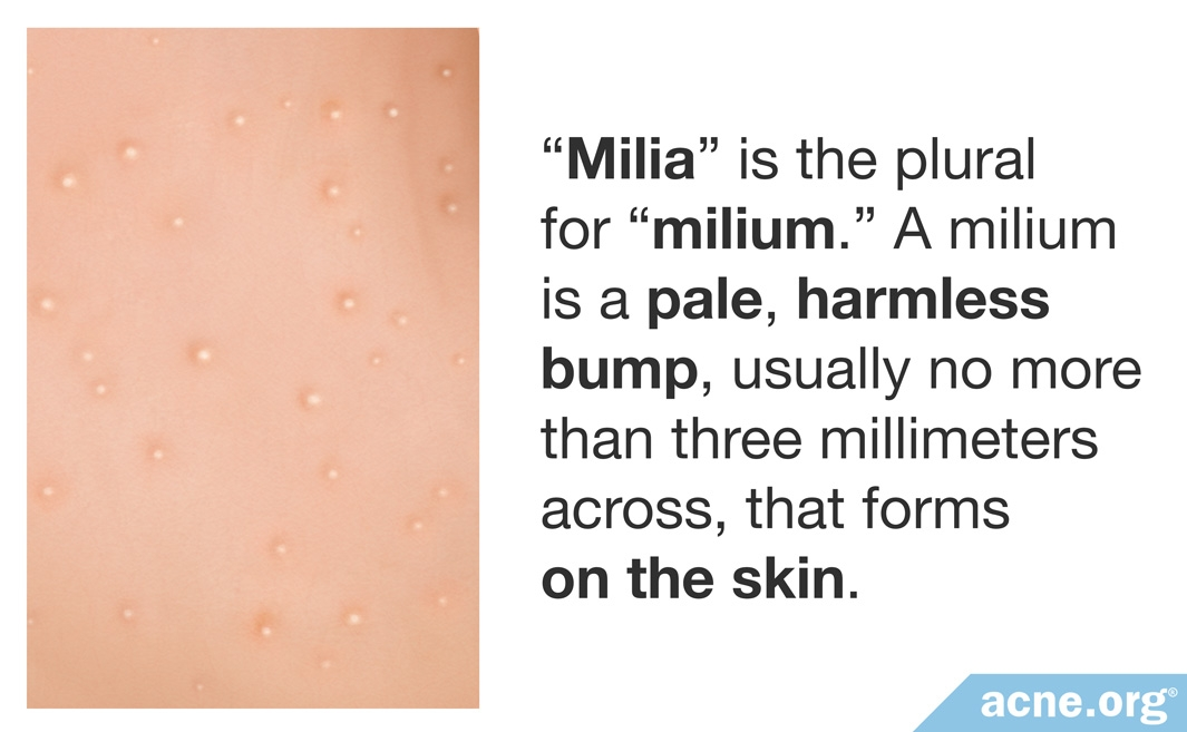 Close-up Graphic of Milia