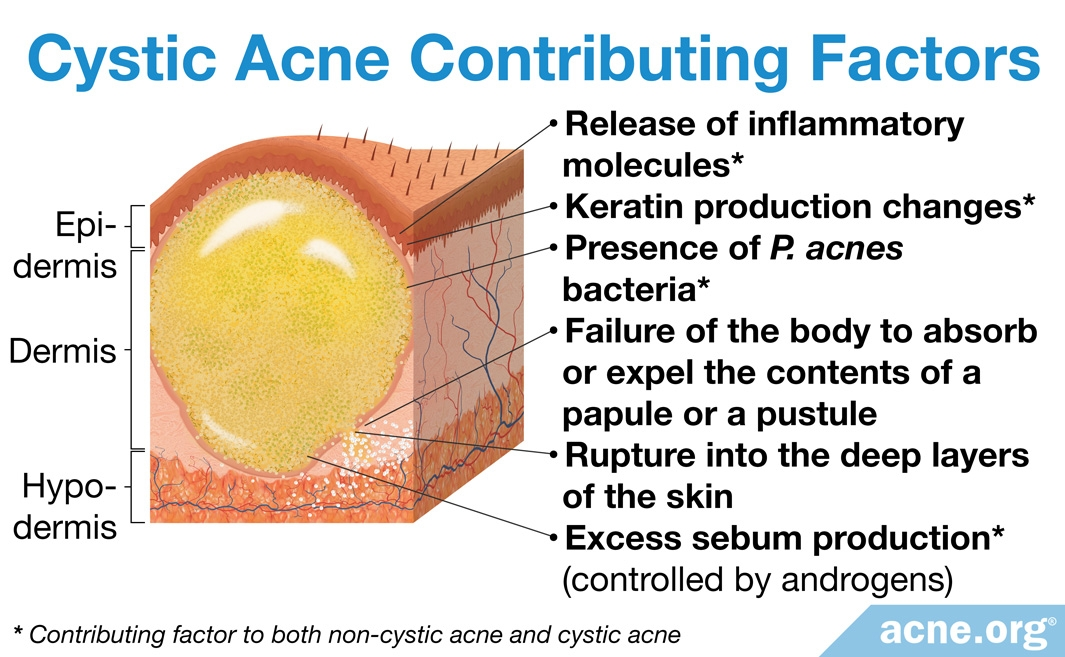 Contributing Factors to Cystic Acne