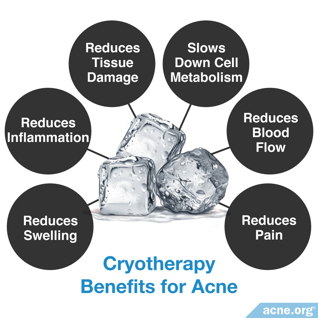 Cryotherapy Benefits for Acne