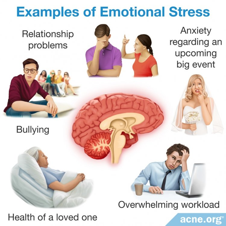 Examples of Emotional Stress
