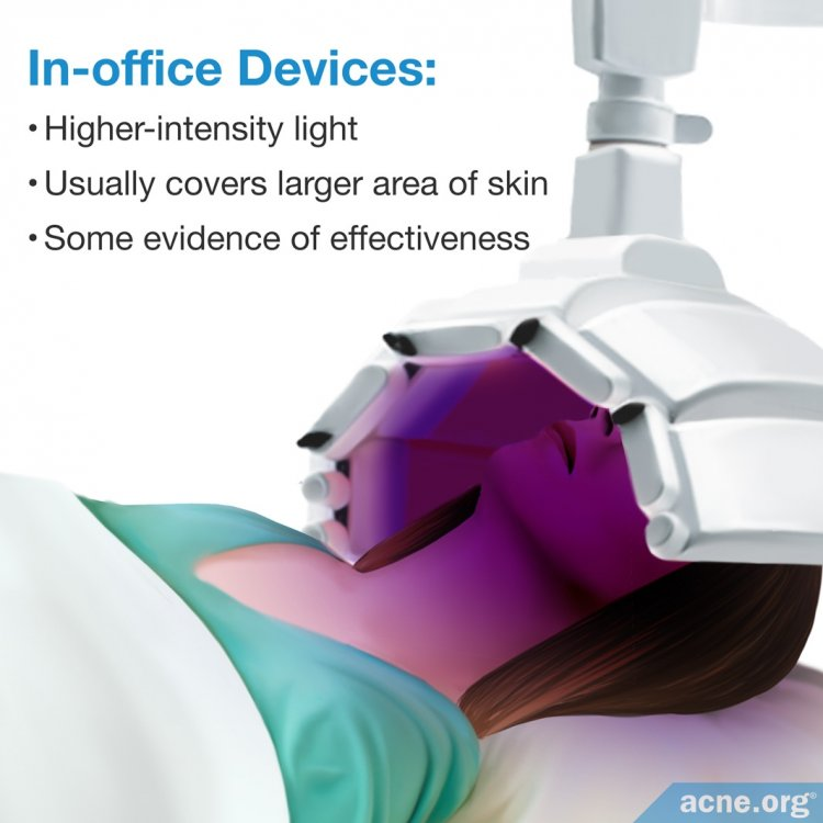 In-office Light Therapy Devices