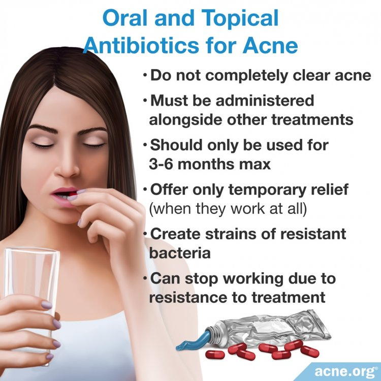 Oral and Topical Antibiotics for Acne