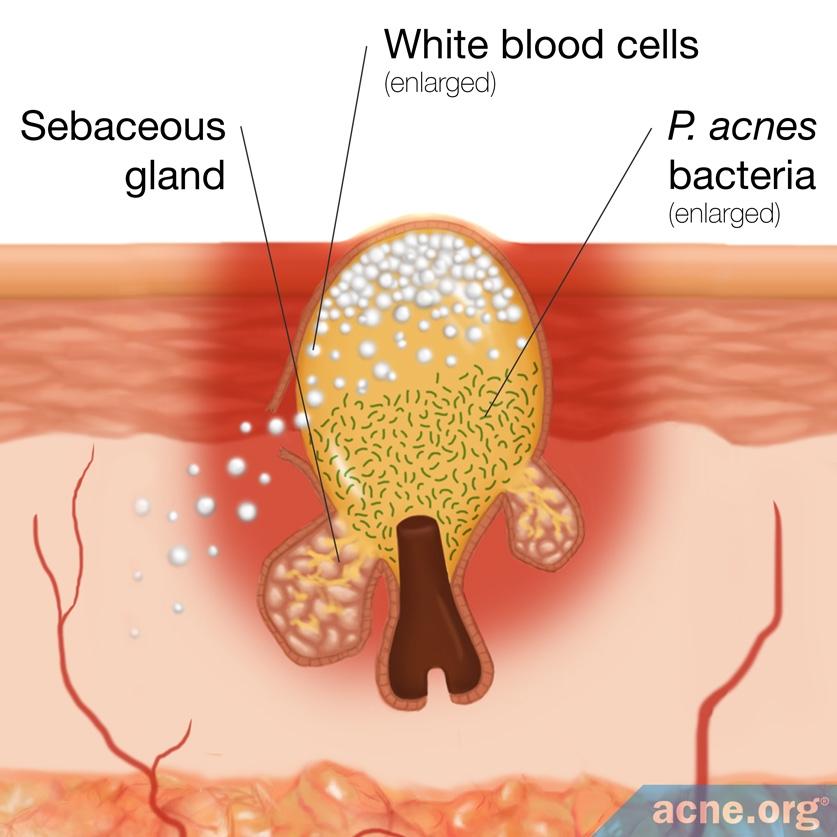 P. acnes Bacteria Inside a Skin Pore
