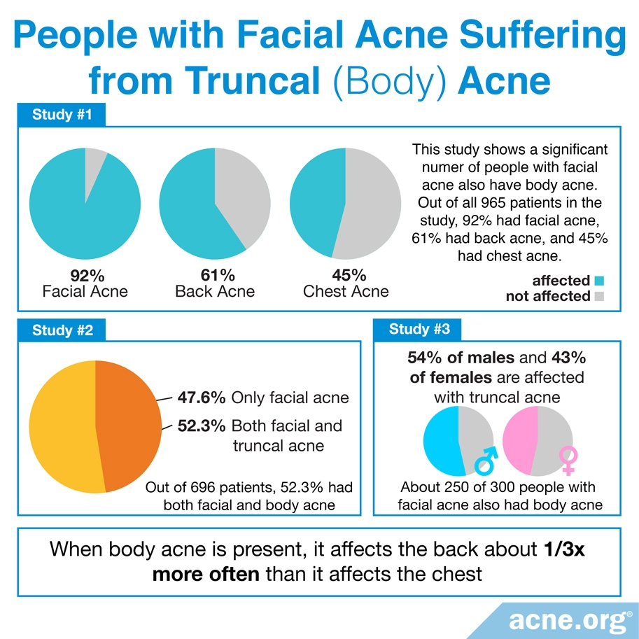 People with Facial Acne Suffering From Body Acne