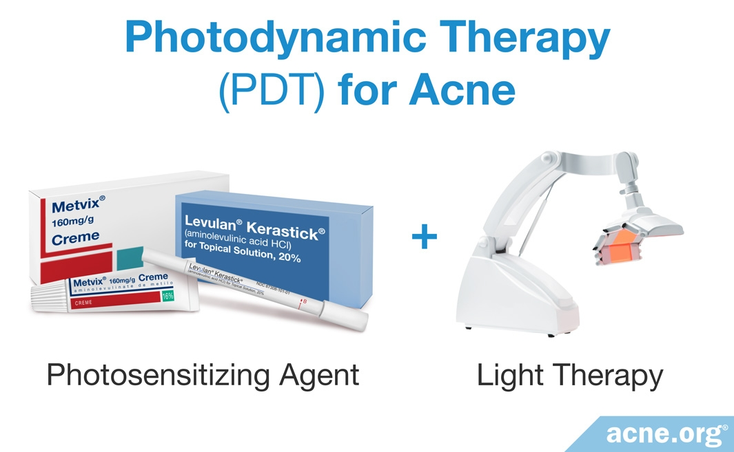 Photodynamic Therapy (PDT) for Acne