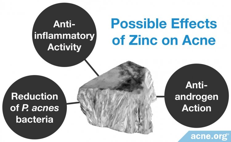 Possible Effects of Zinc on Acne