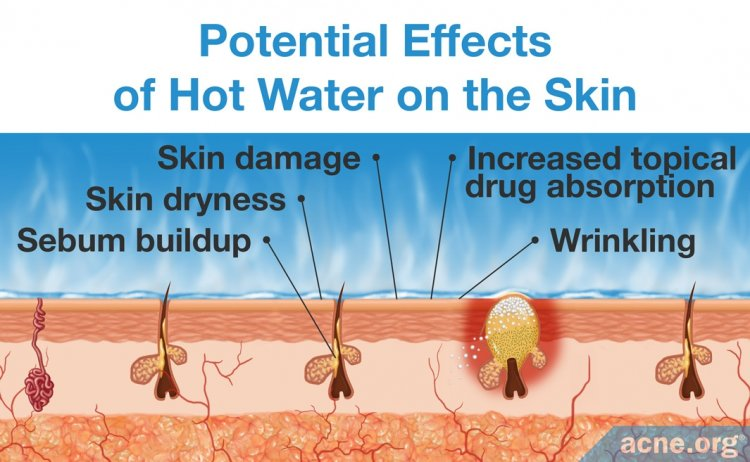 Potential Effects of Hot Water on the Skin