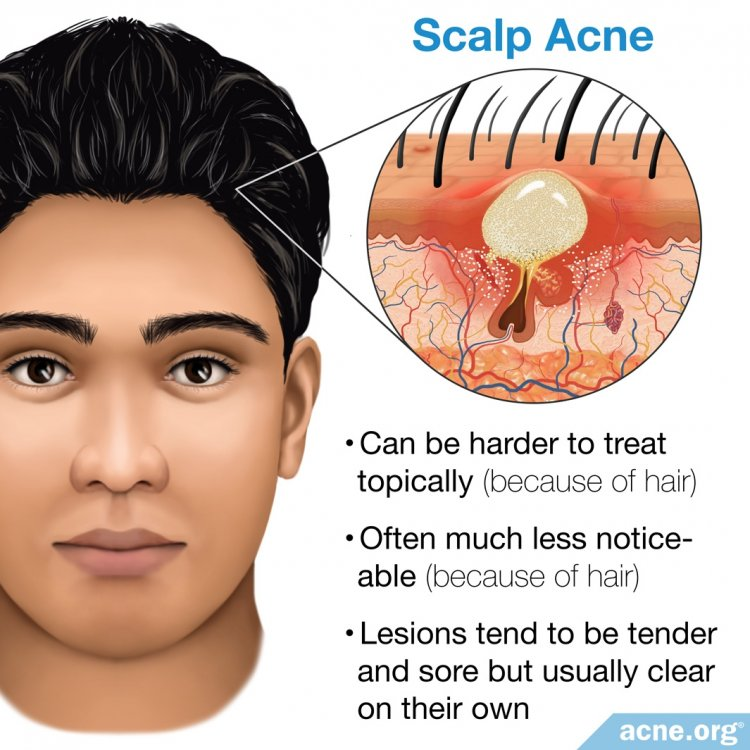 Scalp Acne - Acne.org