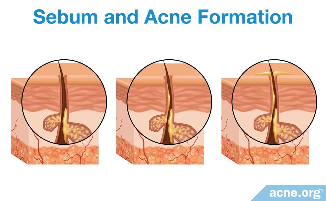 Sebum Development in the Pore