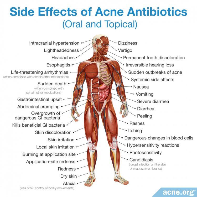 Side Effects of Oral and Topical Antibiotics for Acne