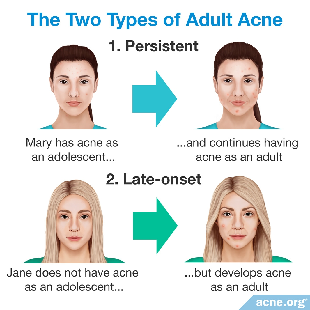The Two Types of Adult Acne