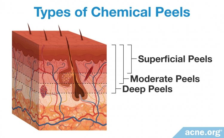 Chemical Peels For Acne Do They Work Acne Org