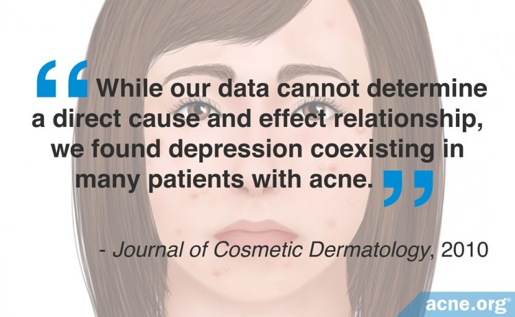 We Found Depression Coexisting in Many Patients with Acne