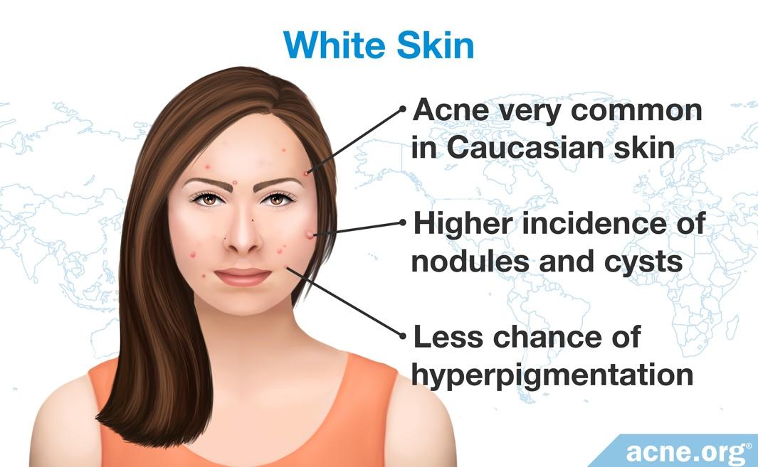 White Skin and Acne