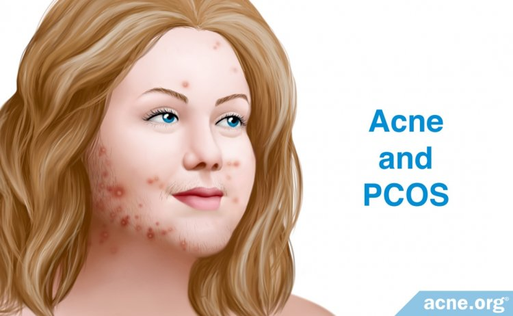 Acne and PCOS