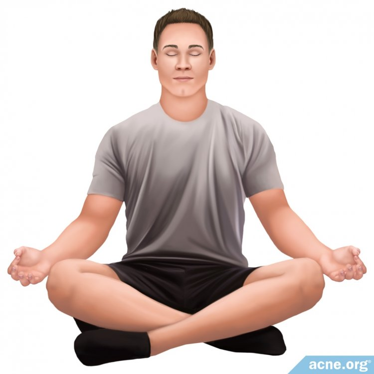 Alternative Therapies for Acne: Yoga