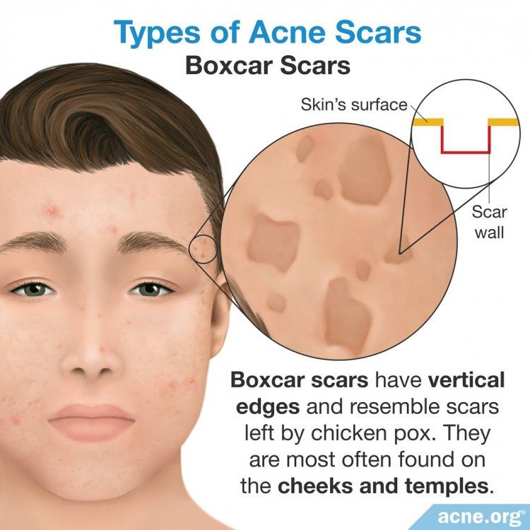 Boxcar Scars