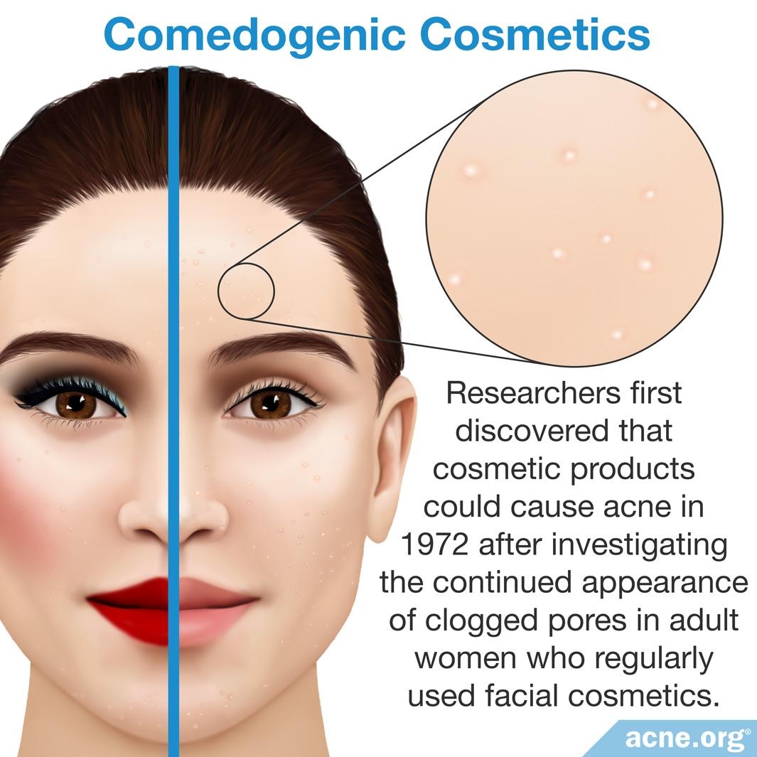 Comedogenic Cosmetics