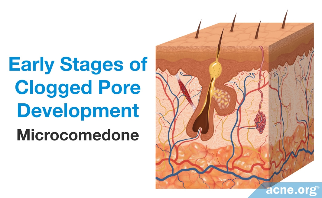 Early Stages of Clogged Pore Development: Microcomedone