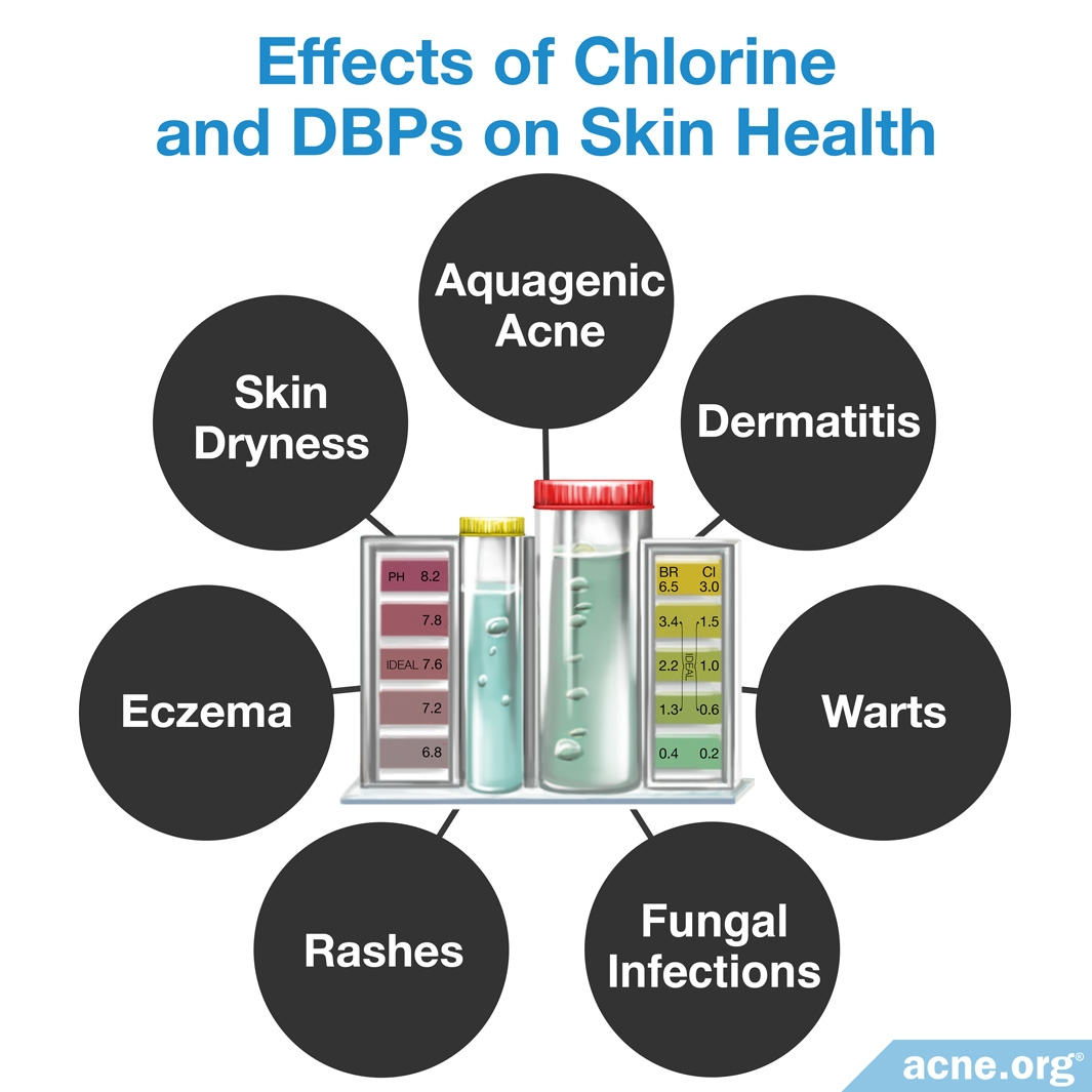 Effects of Chlorine and DBPs on Skin Health