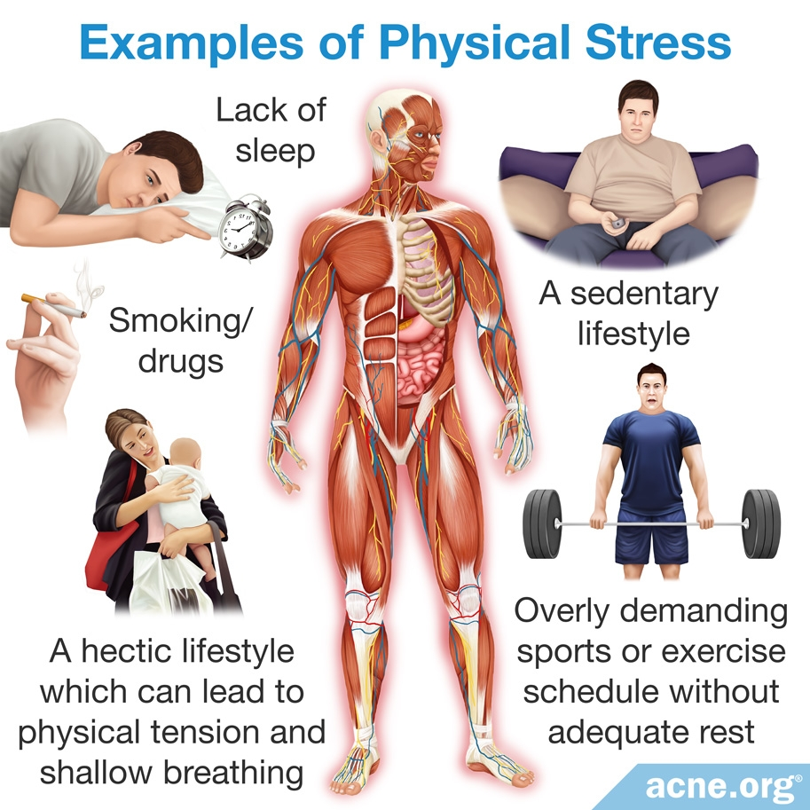 Examples of Physical Stress