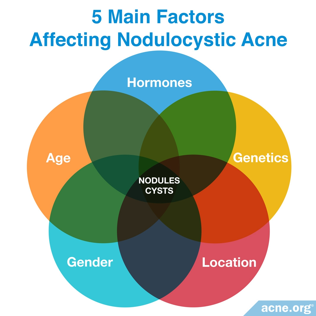 Five Main Factors Affecting Nodulocystic Acne