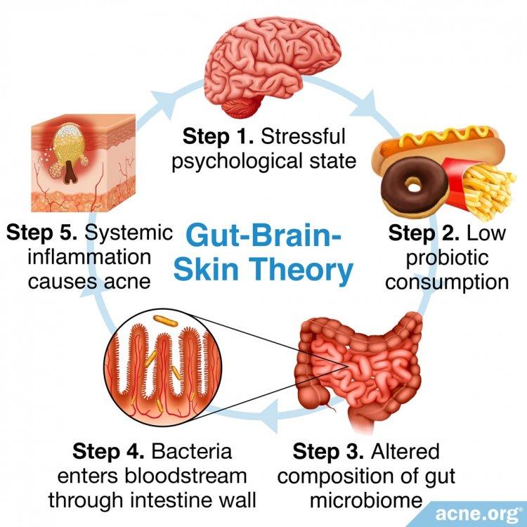 Gut-Brain-Skin Theory
