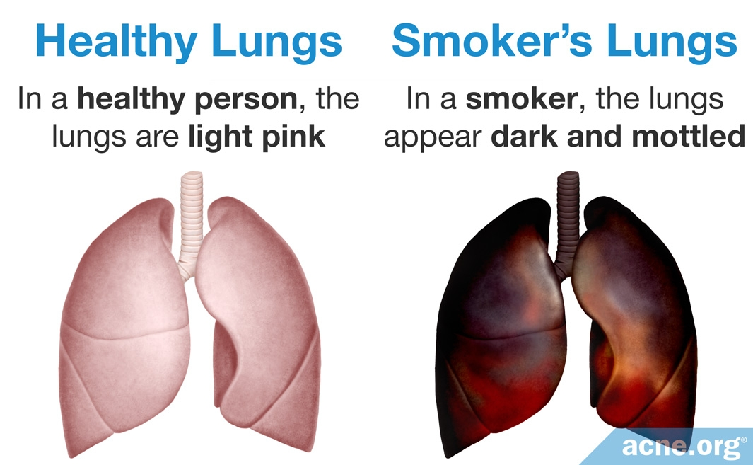 Healthy Lungs / Smoker's Lungs