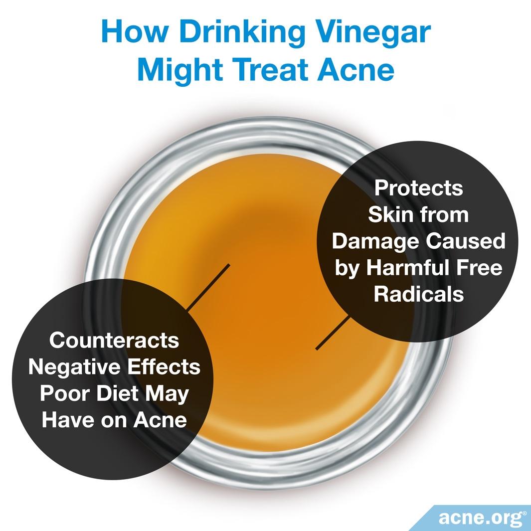 How Drinking Vinegar Might Treat Acne