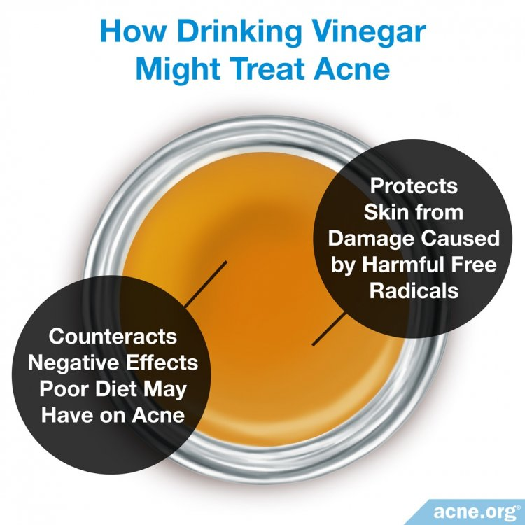 How Drinking Vinegar Might Treat Acne