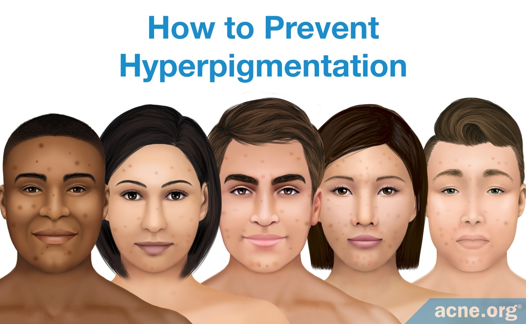 How to Prevent Hyperpigmentation