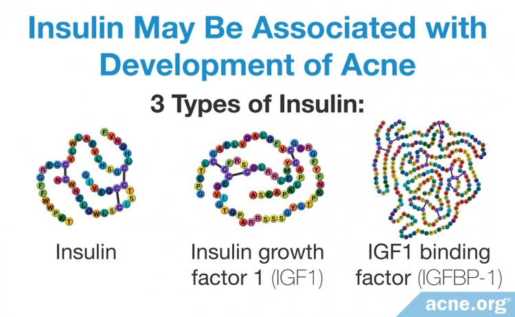 Insulin May Be Associated with Development of Acne
