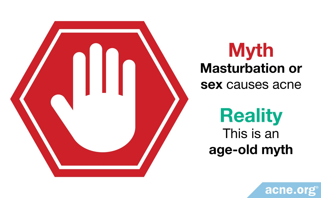 Myth: masturbation or sex causes acne