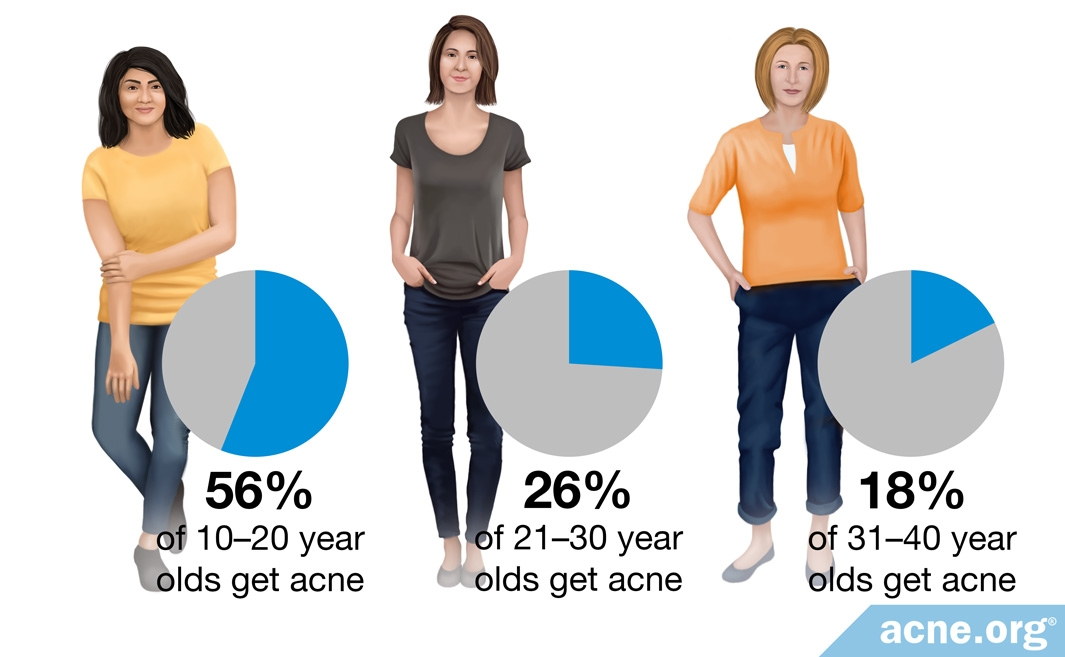 Percentage of Acne in Females by Age