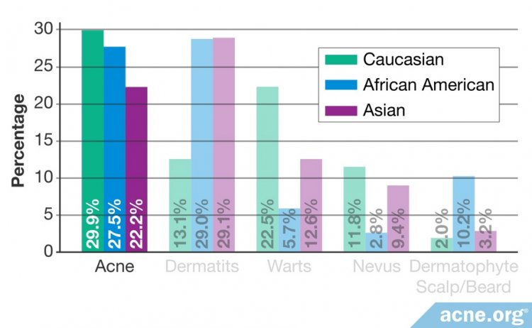 Percentage with Acne by Ethnicity