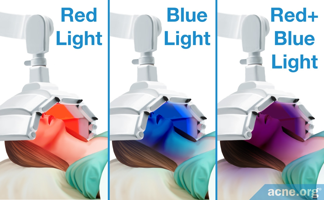 Red Light - Blue Light - Combination