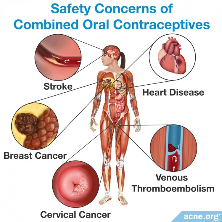 Safety Concerns of Combined Oral Contraceptives