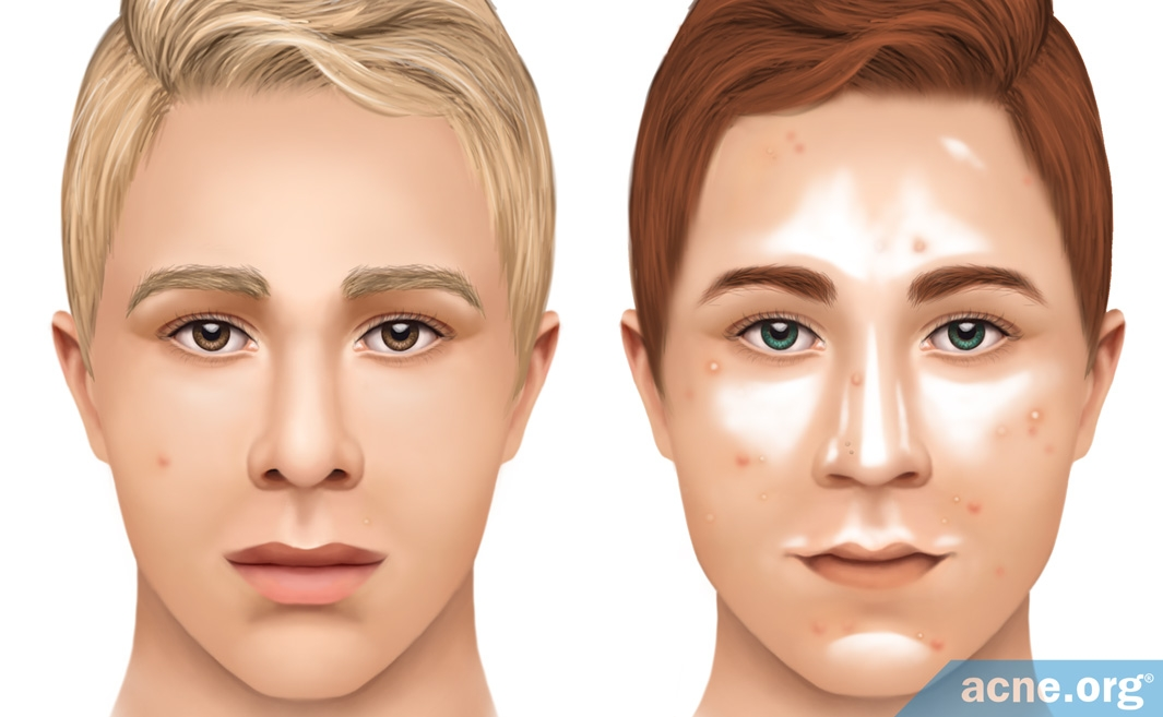 Sebum Levels in Acne Patients