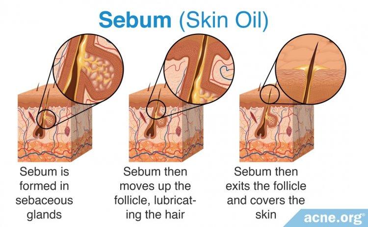 Sebum (Skin Oil)